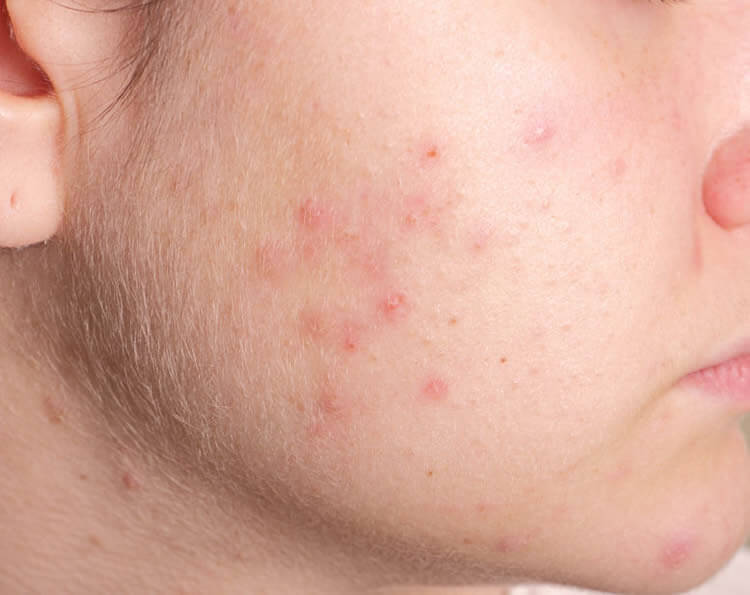 PCOS Tucson - PCOS Acne Skin - Polycystic Ovarian Syndrome