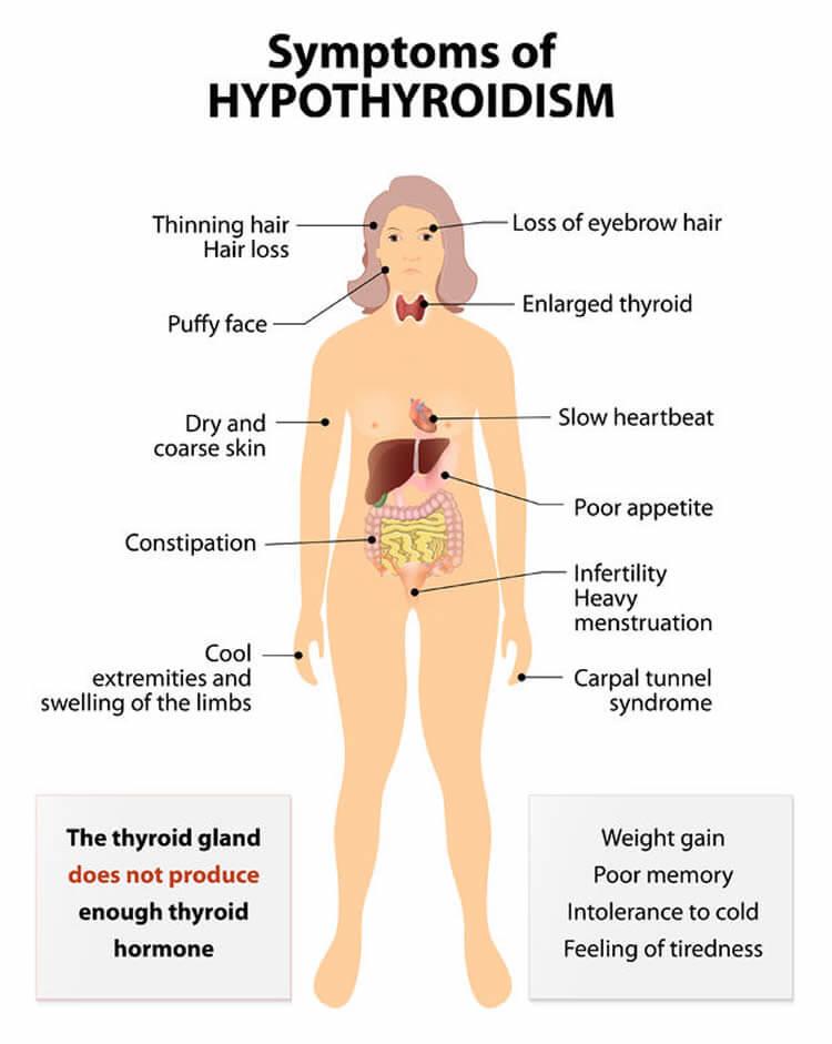 Tucson Hypothyroidism
